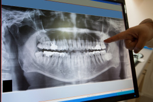 Photo of Dental X-Ray of a set of teeth being examined