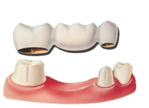 Graphic Image of an example of an Dental Bridge